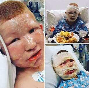 SPECIAL LITTLE BOY WHO SUFFERED SEVERE BURNS